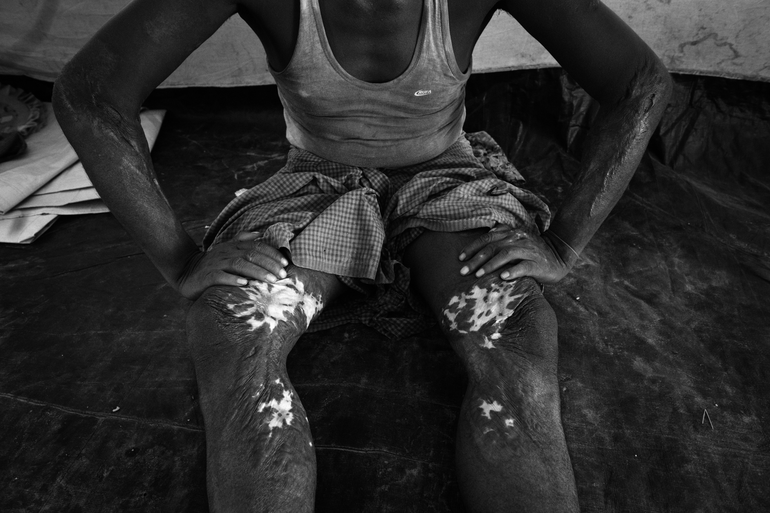 A wounded Rohingya show burn injury since Myanmar Monks torched his house. More than half a million Rohingya refugees have flooded into Bangladesh to flee an offensive by Myanmar's military that the United Nations has called 'a textbook example of ethnic cleansing'. The refugee population is expected to swell further, with thousands more Rohingya Muslims said to be making the perilous journey on foot toward the border, or paying smugglers to take them across by water in wooden boats. Hundreds are known to have died trying to escape, and survivors arrive with horrifying accounts of villages burned, women raped, and scores killed in the 'clearance operations' by Myanmar's army and Buddhist mobs that were sparked by militant attacks on security posts in Rakhine state on August 25, 2017. What the Rohingya refugees flee to is a different kind of suffering in sprawling makeshift camps rife with fears of malnutrition, cholera, and other diseases. Aid organizations are struggling to keep pace with the scale of need and the staggering number of them - an estimated 60 percent - who are children arriving alone. Bangladesh, whose acceptance of the refugees has been praised by humanitarian officials for saving lives, has urged the creation of an internationally-recognized 'safe zone' where refugees can return, though Rohingya Muslims have long been persecuted in predominantly Buddhist Myanmar. World leaders are still debating how to confront the country and its de facto leader, Aung San Suu Kyi, a Nobel Peace Prize laureate who championed democracy, but now appears unable or unwilling to stop the army's brutal crackdown.