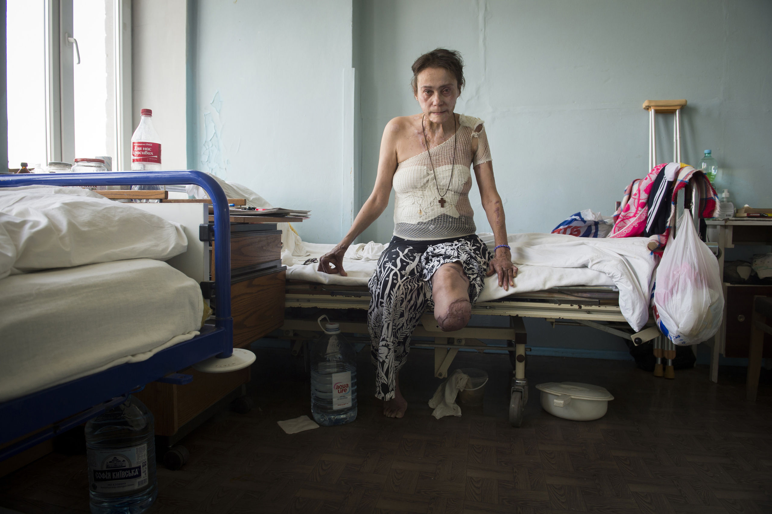 Kiev Hospital N°2. Iryna Borisovna. 53 years old was injured by bomb  the 14 th Feburary on Shasta city Lugansk region. The fight between pro-Ukrainian troops and pro-Russian separatists is continuing in the Donbas region of eastern Ukraine despite the recent Minsk ceasefire agreements.